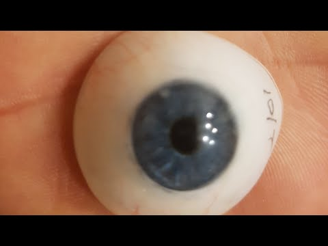 22yr old woman getting prosthetic eyes removed