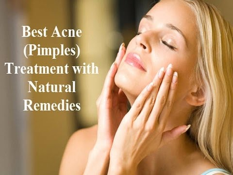Fast Acne Treatment with Home Remedies - Prevent Scar Formation