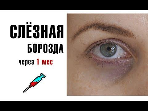 Коррекция слёзной борозды ГК. Тёмные круги под глазами. Врач косметолог Халима БЕляева.