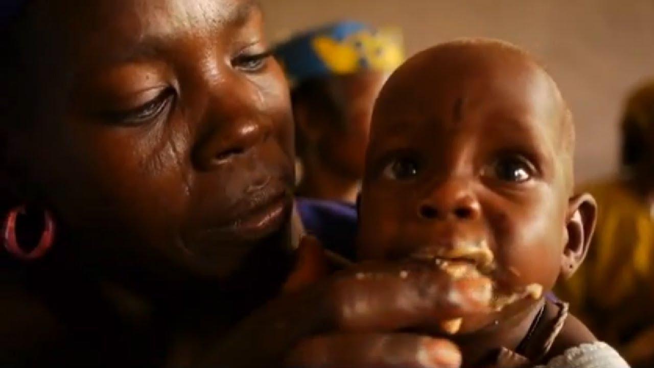 Essay On Malnutrition