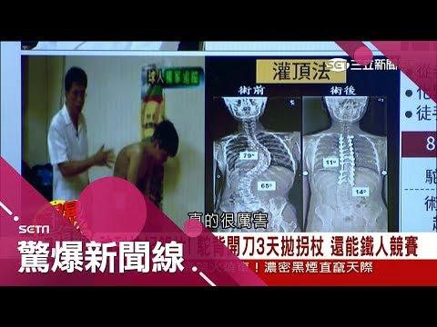 台灣-驚爆新聞線-20180721 脊椎神醫不靠X光眼睛就能掃描 駝背開刀3天挺直後還能鐵人競賽