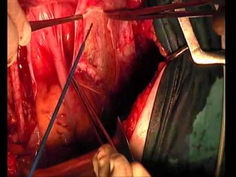 Histerectomía abdominal - Parte 1