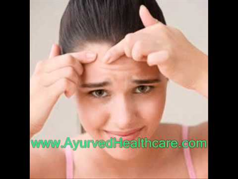 7 Ayurveda Treatments for Curing Acne Naturally