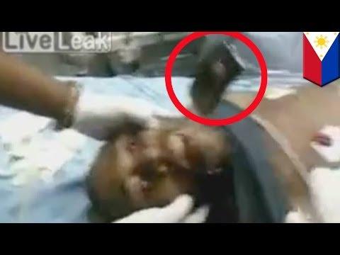VIDEO: Doktor sa Pilipinas, nakahugot ng cell phone mula sa bibig ng isang lalake!
