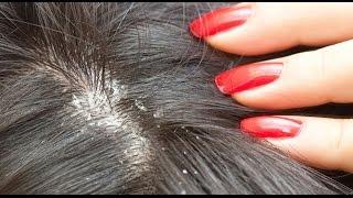 बालों की रूसी को दूर करने के घरेलू नुस्खे, Home Remedies for Dandruff