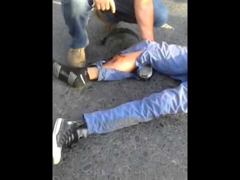 Fractura Expuesta accidentes 2014