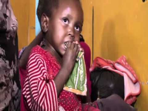 Somalia: Fighting Malnutrition in Galcayo