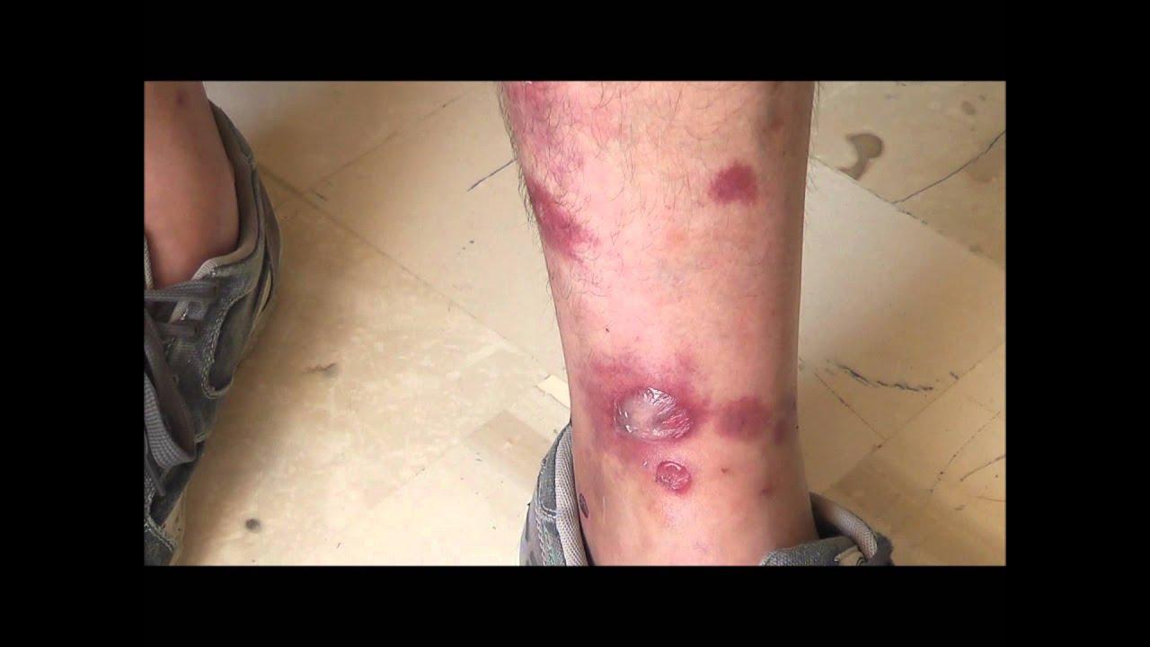 ankle bites #9
