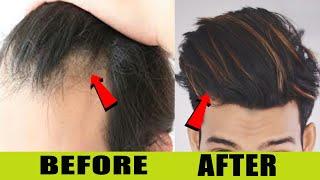 This Remedies Gives You 100% Thick Hair Quickly🔥HINDI ☆ SAYAN