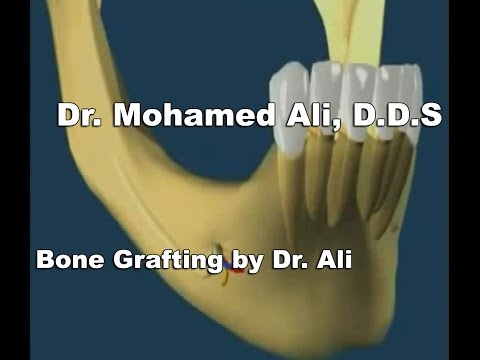 Bone Grafting by Dr ALI - San Francisco Dentist, CA