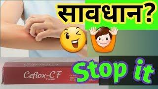 Ceflox-CF cream full review||दाद,खाज,खुजली को करे ख़त्म☝best antifungal medicine,Ceflox cf cream use