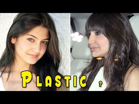 Anushka Sharma's Brand New Lips Secret Revealed video