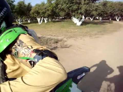 FRACTURA TIBIA Y PERONE MOTOCROS