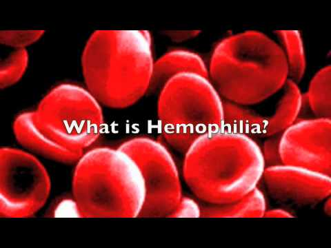 Hemophilia The Royal Disease