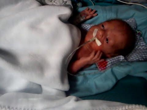 Bebe prematuro Pol,28 semanas de gestacion (cir4) 590gr.
