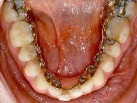 Orthosmile - iBraces 3