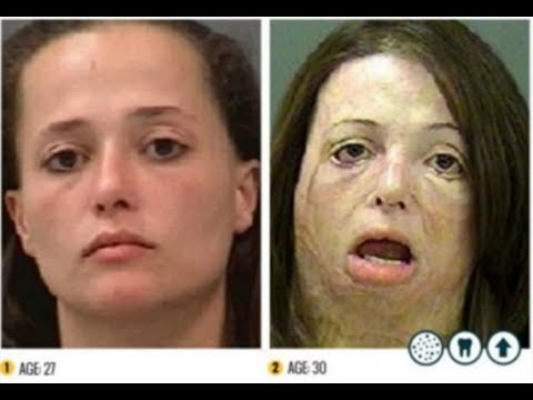 The Shocking Faces of Meth Campaign