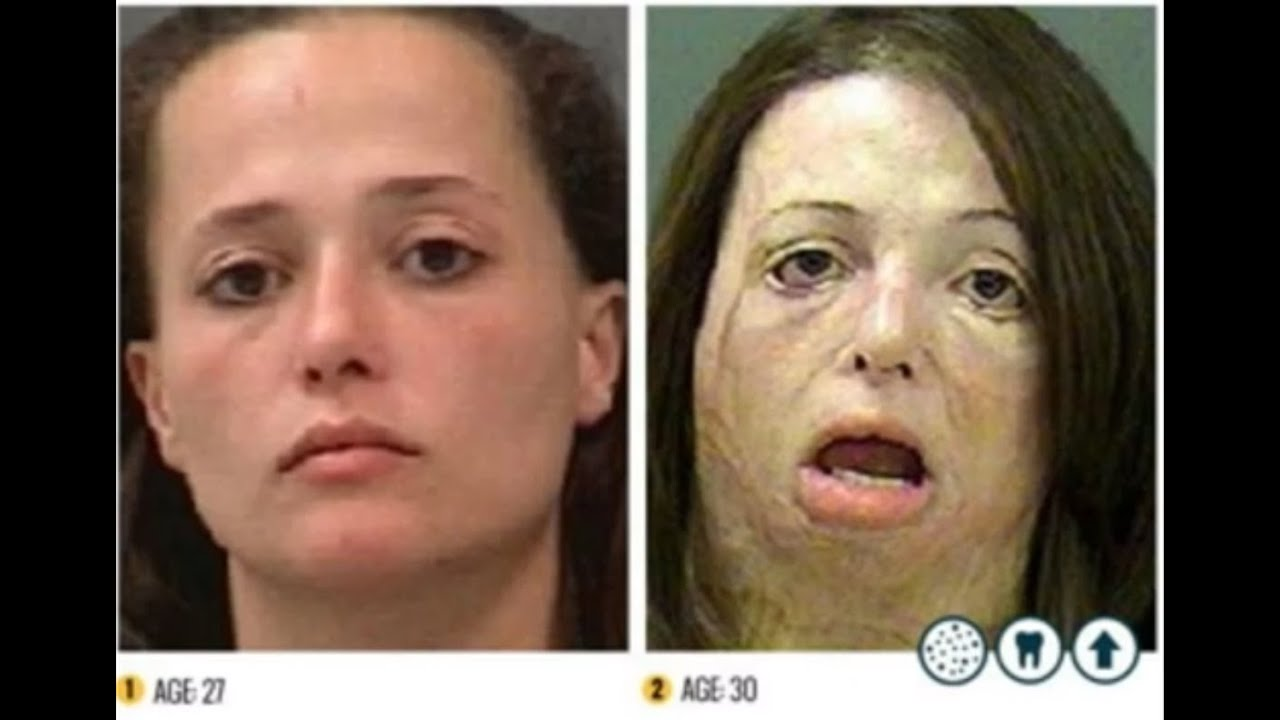 People Before And After Meth The Shocking Faces of Meth