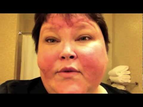 Lupus 2-26 & 27-12 How much blood?... Stem Cell Transplant