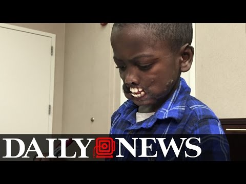 Congolese Boy to Undergo Face Surgery After Chimp Attack