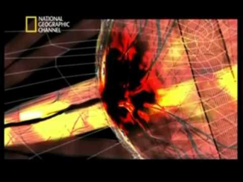 CIENCIA AL DESNUDO: La fuerza del rayo - Sobreviviente de impacto por rayo