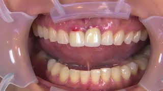 Replacing PFM Crowns on Teeth 8 & 9 with BruxZir Solid Zirconia Crowns