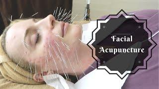 Facial Acupuncture | Korean Beauty Secret