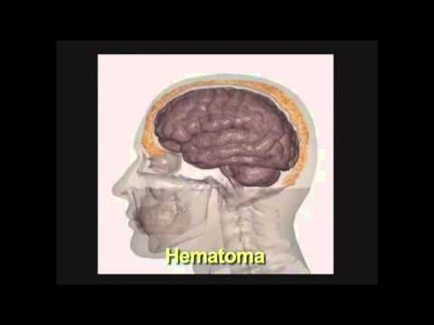 Traumatismo encéfalo craneal Terapia Ocupacional