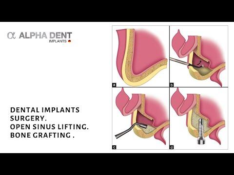 Open sinus lift, bone grafting for dental implants placement. Surgery procedure by Dr Sobolevski