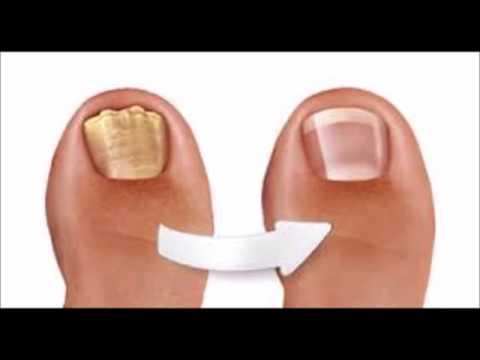 traitement des mycoses des pieds