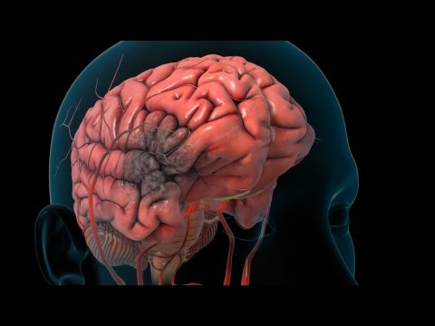 Stroke | Nucleus Health