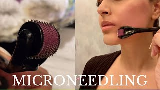MICRONEEDLING AT HOME | How I Healed My Post Acne Scars Quickly