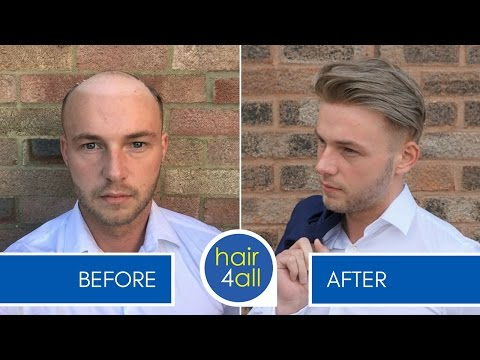 Non Surgical Hair Replacement 10 Things You Should Know First
