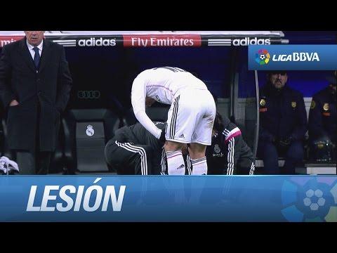 Lesión de James Rodríguez