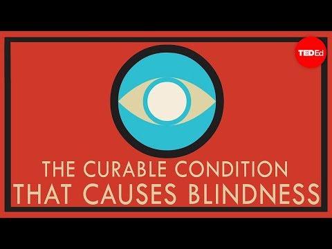 Se fue a Kenya y con una appa lucha contra la ceguera