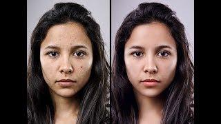 How to retouching Skin | Advanced Photo Retouching Photoshop Tutorial