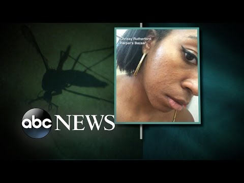 Woman With Zika Tells Her Story