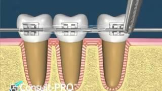 Dişler ortodontik tedavi ile nasıl hareket eder?