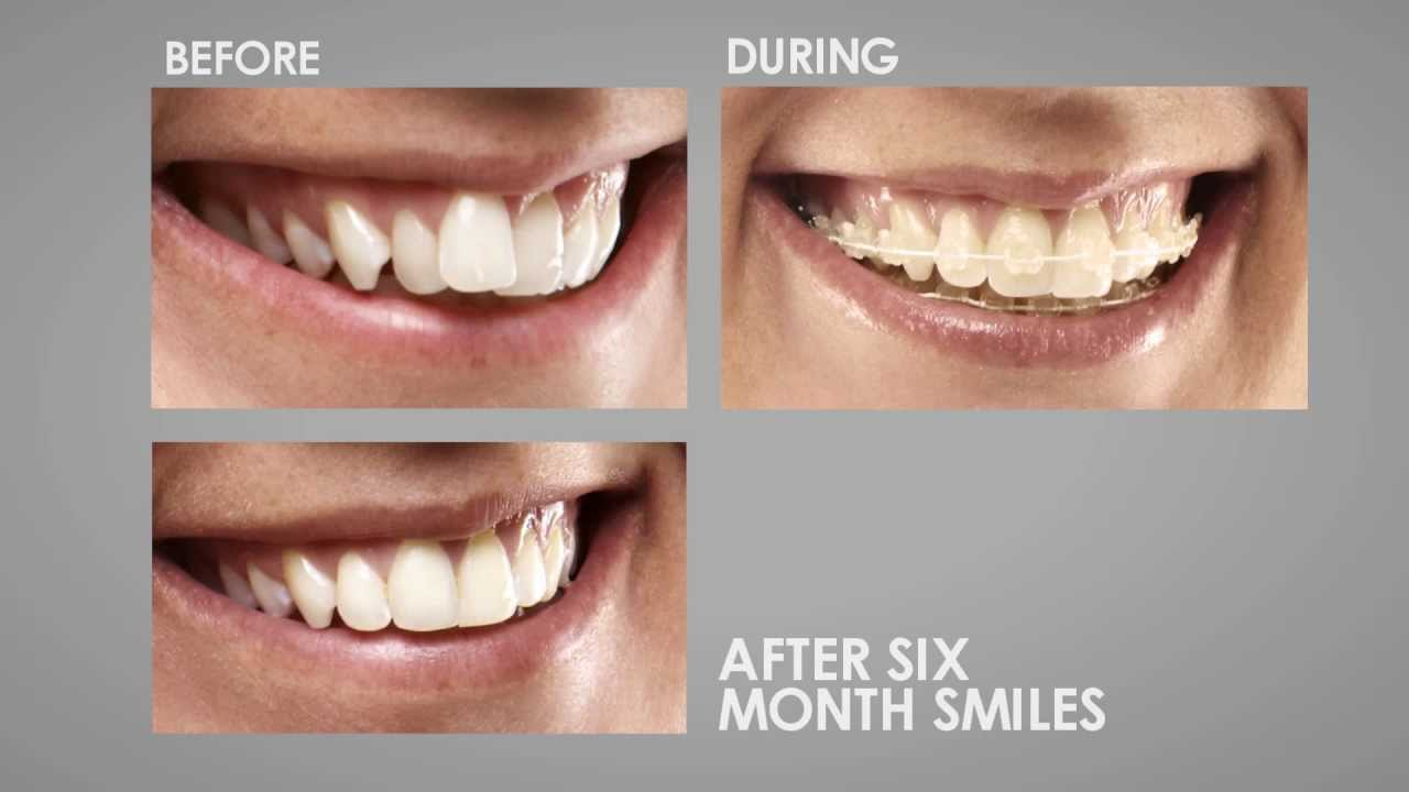 Six Month Smiles - Straight Teeth in Less Time