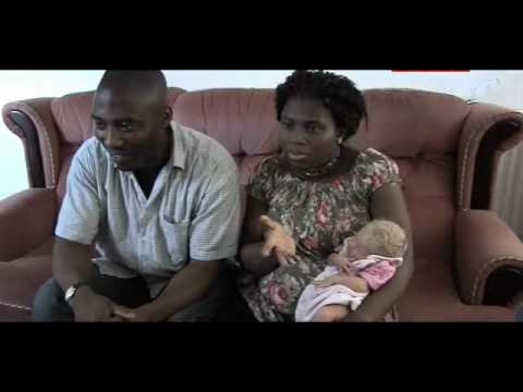 Black Albino Baby Black Parents Not Albino 1