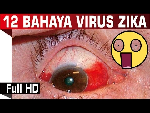 12 Bahaya Mematikan Virus Zika | Jenis Virus Zika (Apa Itu Virus Zika) 1080p HD