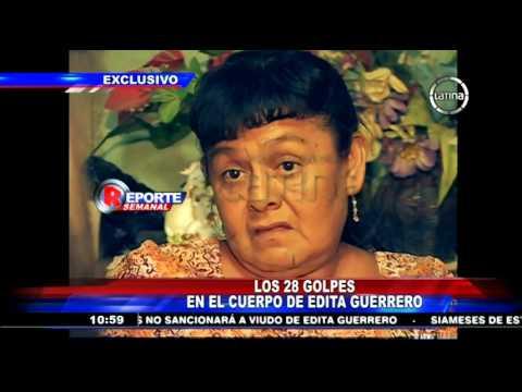 Peritaje oficial revela que Edita Guerrero fue víctima de brutal golpiza