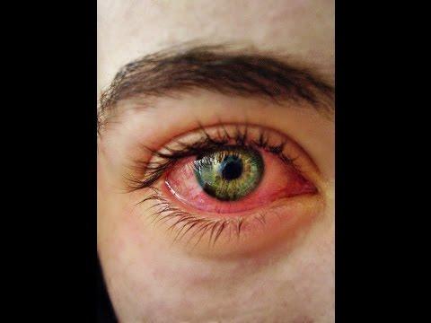 ตาแดง - ทำไมสูบกัญชาแล้วถึงทำให้ตาแดง
