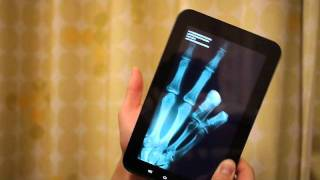 Smart Phone App Air Xray