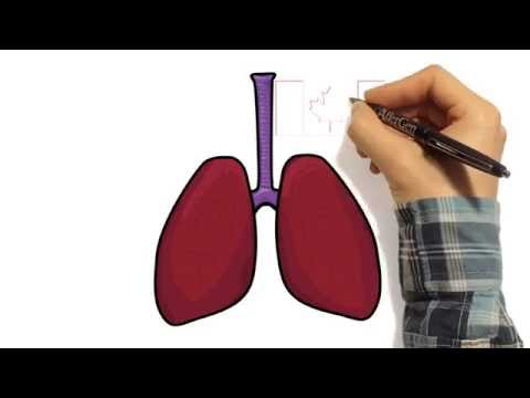 WINNER: David Ngan: Asthma and H1N1 Swine Flu
