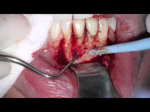 Lower Anterior Periapical Surgery