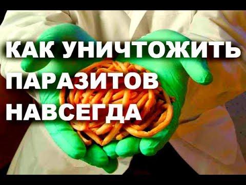 Как уничтожить паразитов НАВСЕГДА # топ5хайп