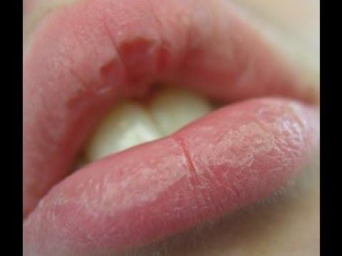Как лечить заеды в уголках рта у детей народными средствами