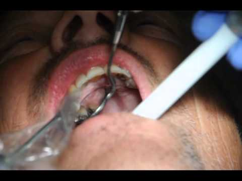 Teeth Doctor Xxx video