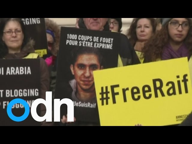 Wife of flogged Saudi blogger Raif Badawi says his health is getting worse